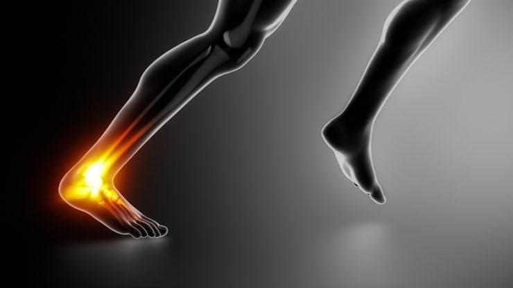 Douleurs tendon Achilles